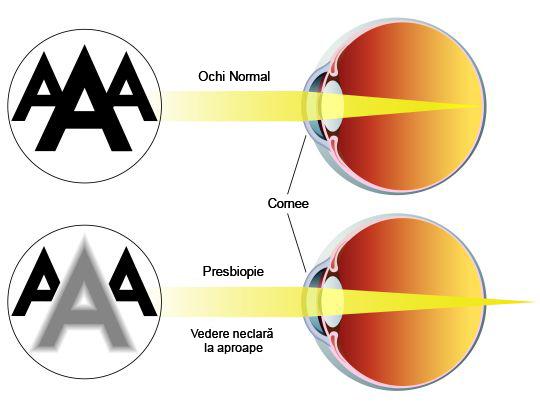 retina-miopie