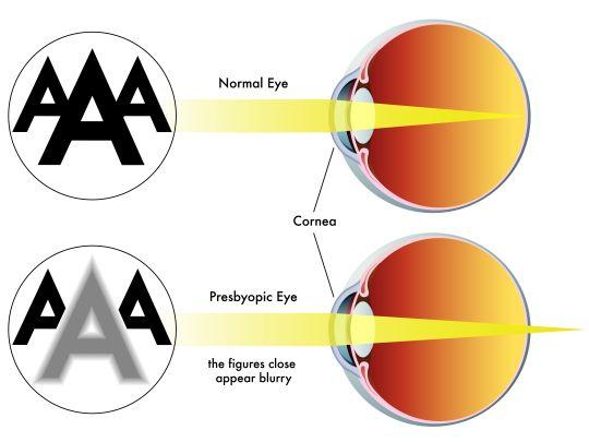 retina-myopia
